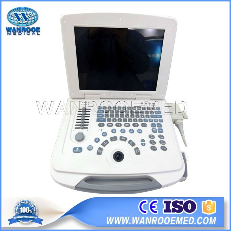 US500 Laptop Full Digital Fetal Pregnancy Ultrasonic Diagnostic Apparatus Ultrasound Scanner Machine